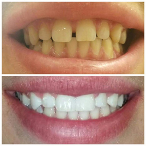 before-after-zoom-whitening-with-bonding
