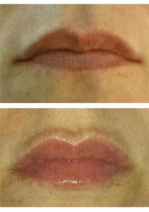 Actual Patient – Before & After – Lip Filler (Belotero Balance)